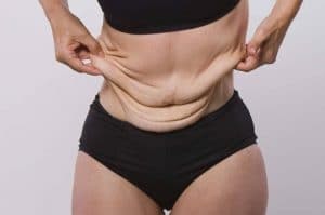 Preventing Loose Skin after Weight Loss with Phentermine
